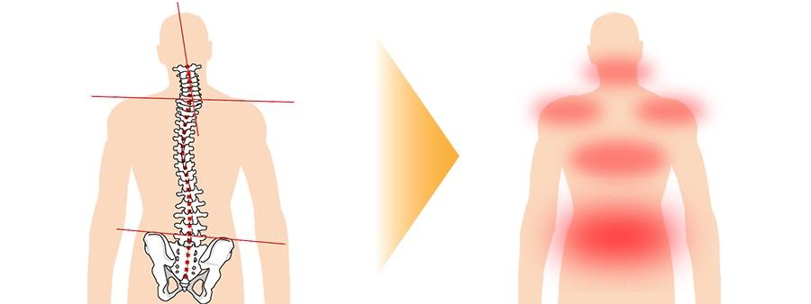 骨格のゆがみの画像と筋肉が痛む画像